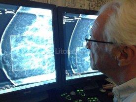 """""""Hay que detectar el c�ncer de mama antes de llegar a palparlo"""""""