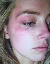 Impactante foto de la esposa de Johnny Depp despu�s de sufrir violencia de g�nero