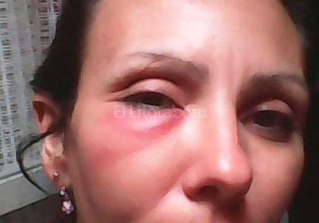La agente María Paula Aranda terminó con severas lesiones en el rostro. Danilo Chiapello