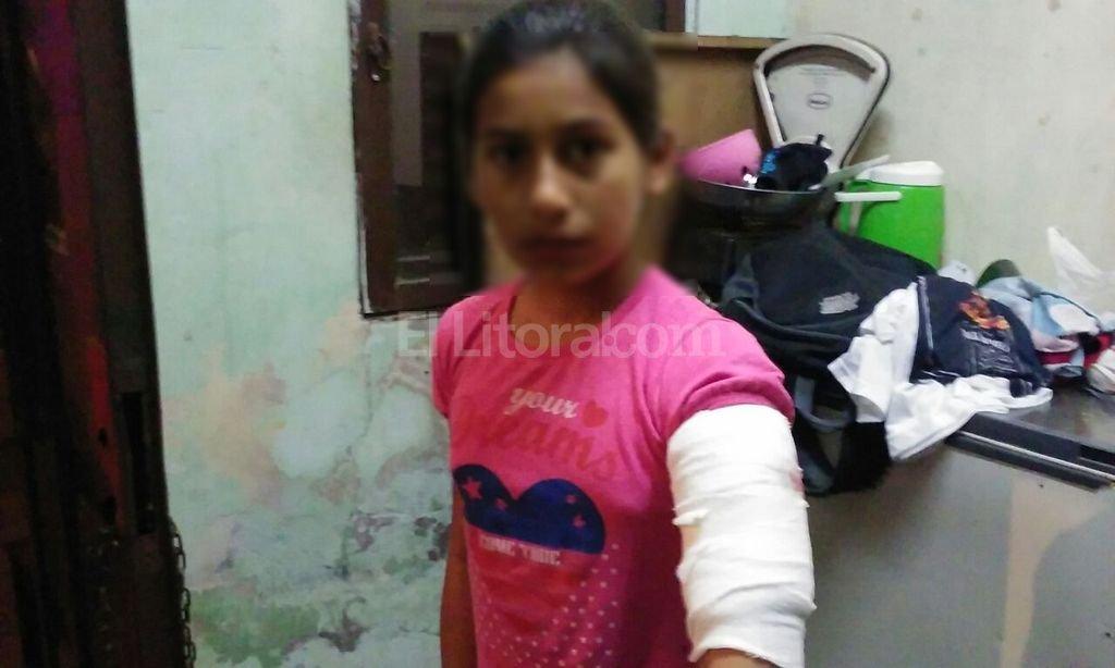 Zamira Gomez tiene diez a�os. El jueves a la noche recibi� el impacto de una bala que le atraves� el brazo izquierdo. Foto:Danilo Chiapello