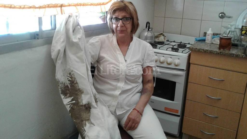 Además de las lesiones en su cuerpo, Andrea se lamenta porque los rufianes le llevaron los medicamentos para su hija que sufre de diabetes. Danilo Chiapello