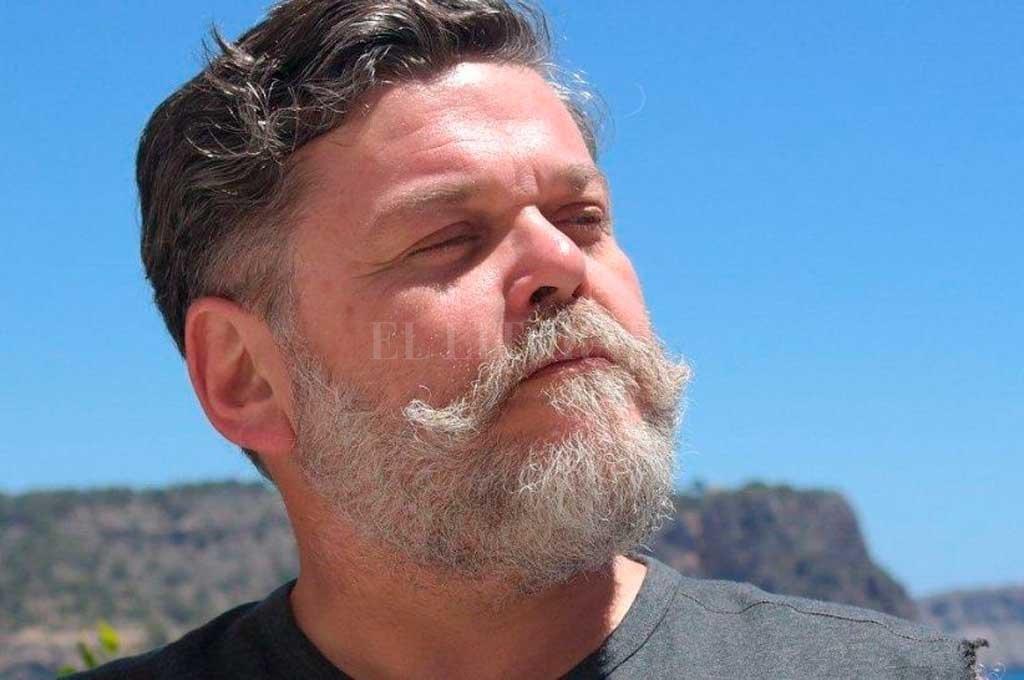 La denuncia de Alfredo Casero: Fue baleado por un taxista