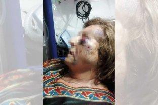 """Los torturaron para robarles  - El rostro de Noemí refleja el infierno sufrido; no conformes, los maleantes también golpearon sus rodillas. """"Le pegaron más de 30 martillazos"""", dijo su esposo."""