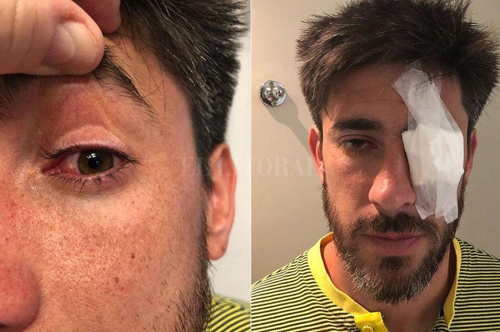 Pérez y Lamardo, los más afectados por el ataque al micro