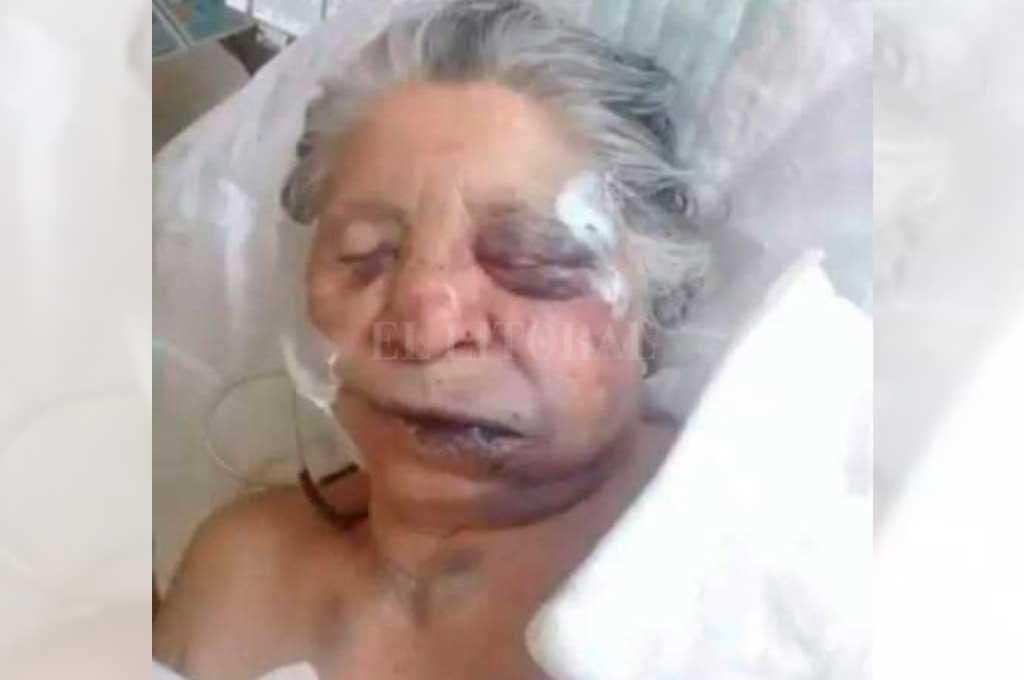 Entradera: brutal golpiza a  una anciana en Reconquista