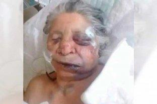 Entradera: brutal golpiza a  una anciana en Reconquista  - Dolores Encina permanece internada en el Hospital Central de Reconquista, en la unidad de terapia intensiva. -