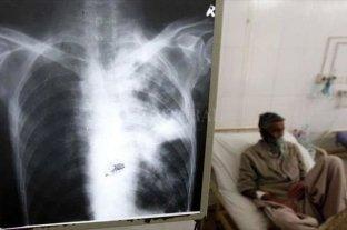 Tuberculosis multirresistente: una amenaza mundial que va en aumento