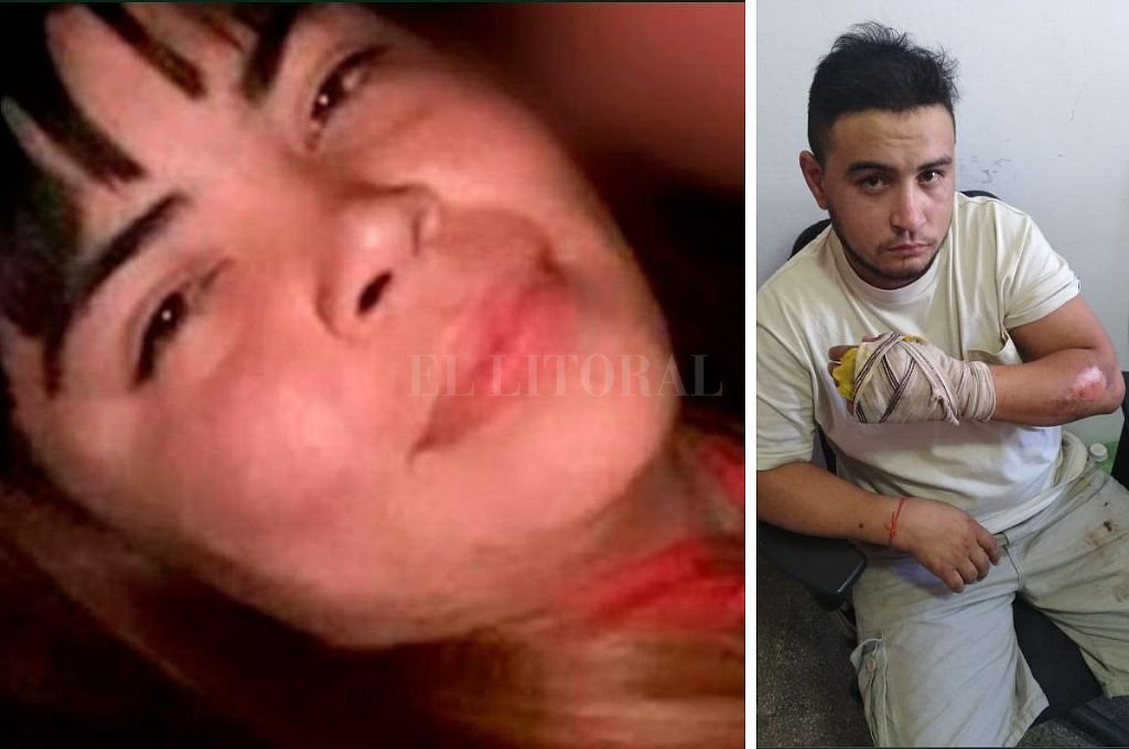 Murió la joven quemada por su pareja durante una discusión