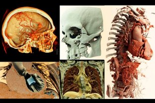 Imágenes 3D e Inteligencia Artificial: herramientas para un mejor diagnóstico