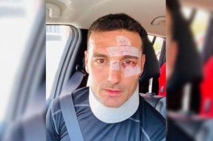 Scaloni recibió el alta médica tras ser atropellado