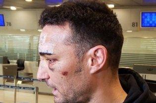 Scaloni llegó a la Argentina y habló de su accidente
