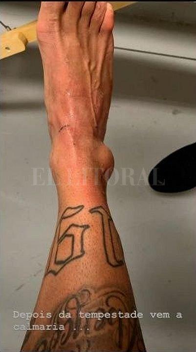 El futbolista publicó en sus redes sociales cómo le quedó el tobillo tras el partido ante Catar. <strong>Foto:</strong> Captura digital