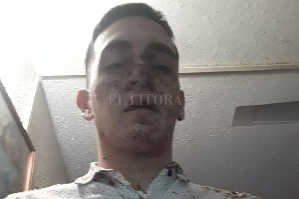 Denuncian a un patovica tras feroz golpiza a un adolescente