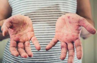 La OMS informó que se triplicó el número de casos de sarampión en el mundo