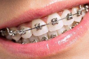 Argentinos desarrollan una ortodoncia que disminuye el tratamiento