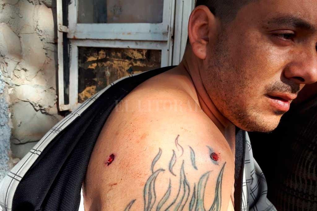 Marcos Bonnet (30) recibió un balazo que le atravesó su hombro derecho. <strong>Foto:</strong> Danilo Chiapello