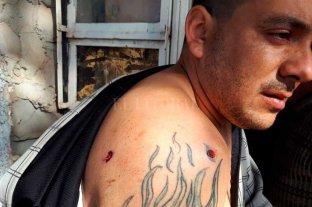 """""""Quieren mi casa para vender drogas"""" - Marcos Bonnet (30) recibió un balazo que le atravesó su hombro derecho."""