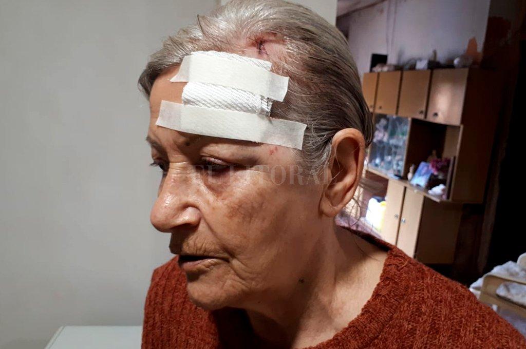 """""""Me azotaban la cara contra la pared y terminaron pegándome un botellazo en la cabeza"""", narró Nidia <strong>Foto:</strong> Danilo Chiapello"""