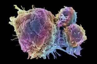 Avances en el tratamiento del cáncer de ovario