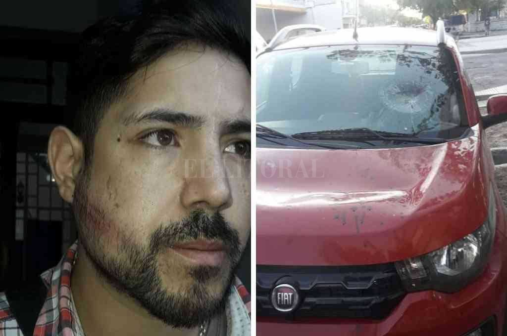 Las huellas de la agresión en el rostro del taxista y los daños en uno de los vehículos involucrados. <strong>Foto:</strong> El Litoral