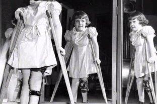 Poliomielitis: qué es y cómo erradicarla