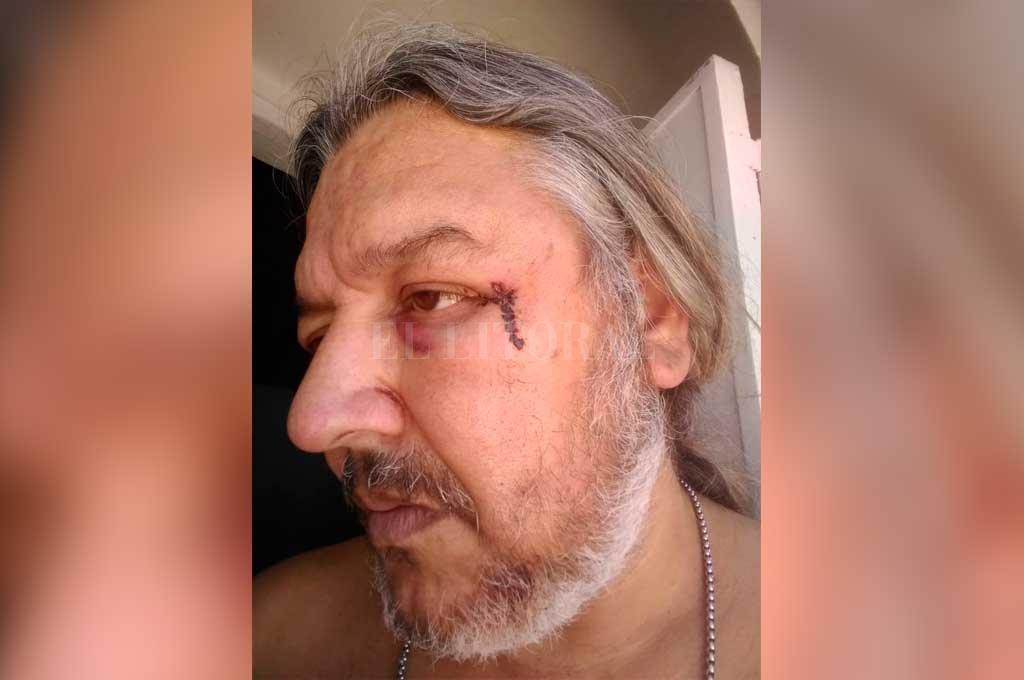 """""""Yo pedí disculpas por lo ocurrido, pero quienes me pegaron jamás dijeron nada"""", opinó Carlos. <strong>Foto:</strong> Danilo Chiapello"""