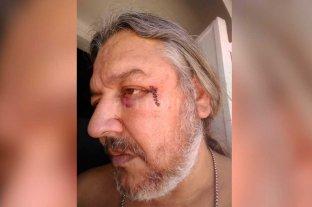 Taxista agredido tras una  discusión por el tránsito