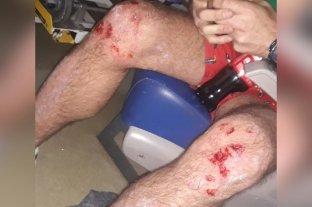 Salvaje ataque homofóbico: Dos jóvenes fueron heridos a latigazos