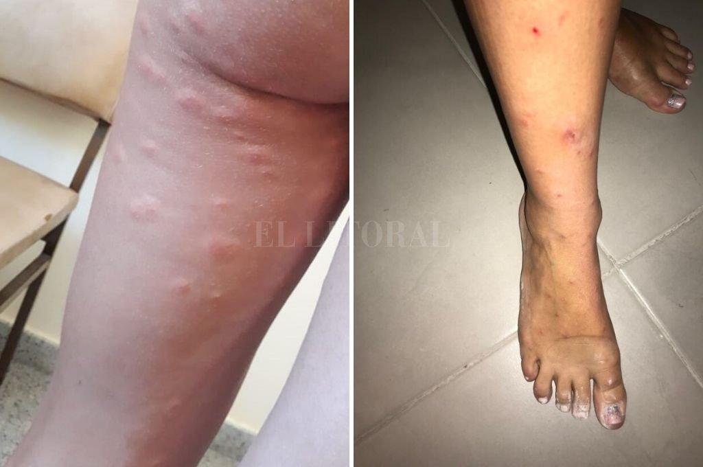 Ronchas. Una mujer que visitó la zona de islas, en Arroyo Leyes, fue víctima estos días del ataque de las mosquitas. Crédito: Gentileza