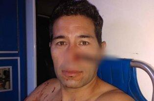 Le clavó un cuchillo en la nariz al verlo ingresar a un hotel con su ex pareja