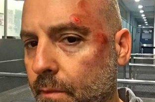 José María Muscari sufrió un grave accidente en monopatín