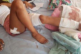 Una joven fue atacada por dos perros pitbull en Mar del Plata