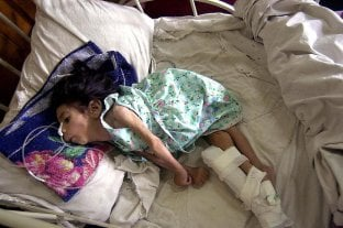 Hay siete niños wichí en situación crítica por desnutrición en el norte salteño -
