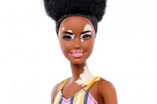 Barbie lanza muñecas con vitiligo para fortalecer la inclusión