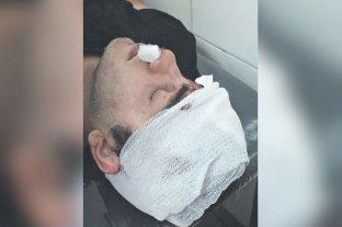 Internan a un joven con fractura de cráneo tras ser golpeado por otros seis en un boliche de Tucumán