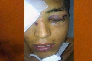 Un joven perdió un ojo tras ser baleado por la policía en Salta