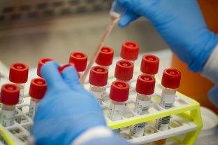 Coronavirus: dos muertos y 103 casos nuevos en el país -  -