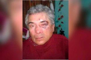 Brutal asalto a un camionero en Sa Pereira