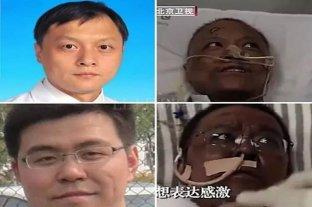 Falleció uno de los médicos chinos que cambió de color por el coronavirus