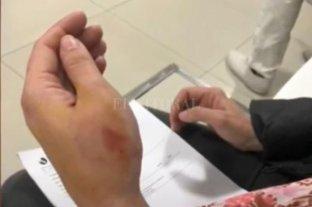 Rosario: ladrones mordieron a una chica para que suelte el celular