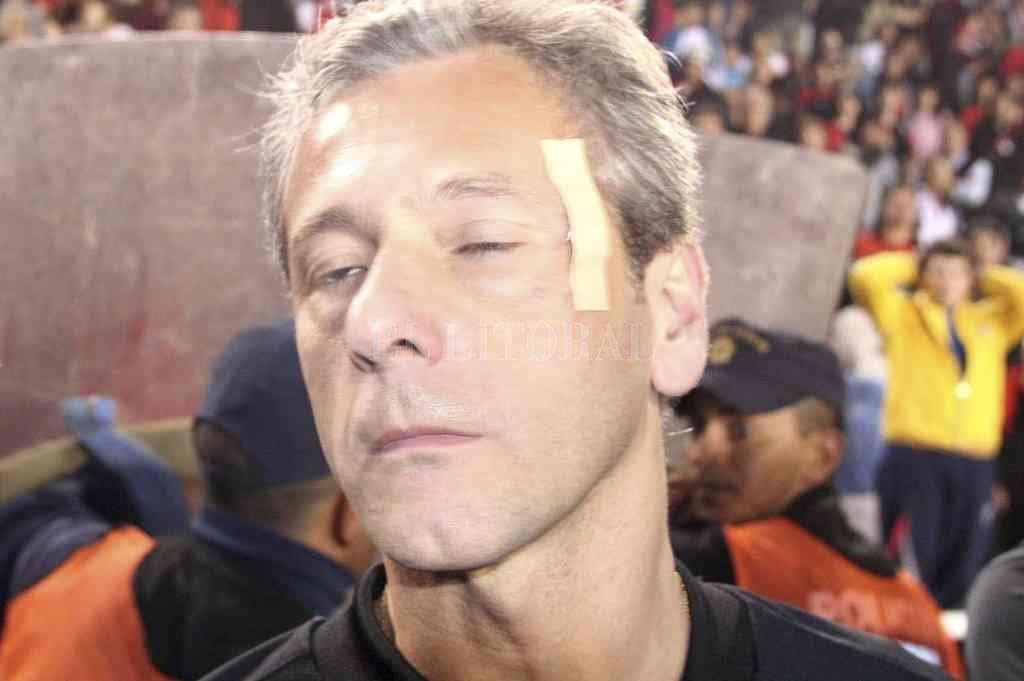 El árbitro asistente Horacio Herrero, con un apósito en el sector donde impactó el proyectil enviado desde la platea este que motivó la suspensión de aquél partido. Crédito: Luis Cetraro