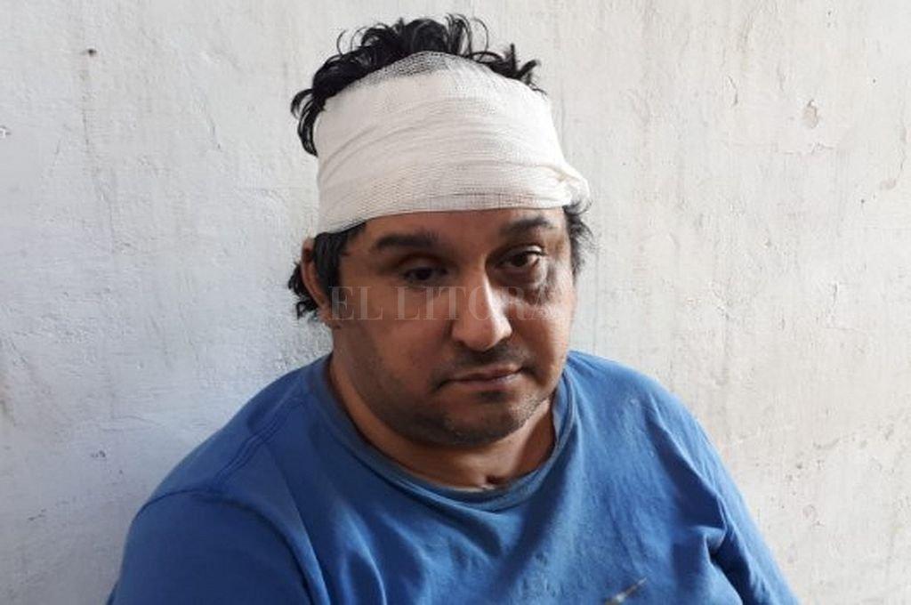 """El dueño de casa recibió varios """"culatazos"""" que le provocaron heridas cortantes en su cabeza. Crédito: Danilo Chiapello Crédito: Danilo Chiapello"""