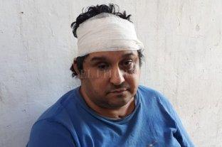 """Violento asalto en María Selva - El dueño de casa recibió varios """"culatazos"""" que le provocaron heridas cortantes en su cabeza. Crédito: Danilo Chiapello"""