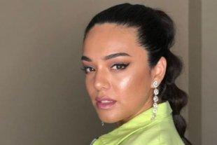 La cantante Ángela Leiva fue internada por un cuadro de neumonía tras ser positiva de Covid-19