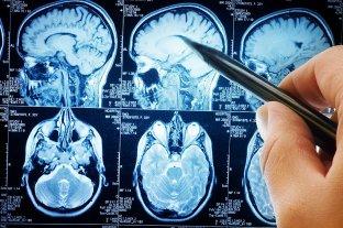 El cerebro de algunos recuperados de coronavirus podría envejecer hasta 10 años -