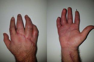 Reconstruyen con éxito cuatro dedos de un trabajador rural -