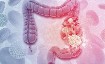 Cáncer de colon: recomiendan bajar a 45 la edad para comenzar con estudios