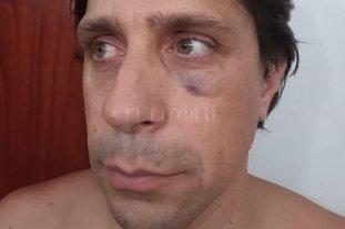 Atacaron a golpes al presidente comunal de Fighiera