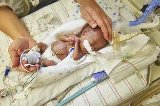 Buscan desarrollar placentas artificiales para bebés prematuros