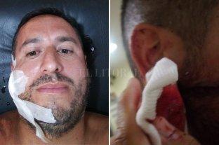 """Asaltan a repartidor y le pegan un tiro en la cara - Tras ser baleado, Sergio regresó hasta La Parrilla donde sus compañeros y su patrón llamaron a la policía. """"No quiero trabajar más de noche"""", dijo la víctima a El Litoral"""